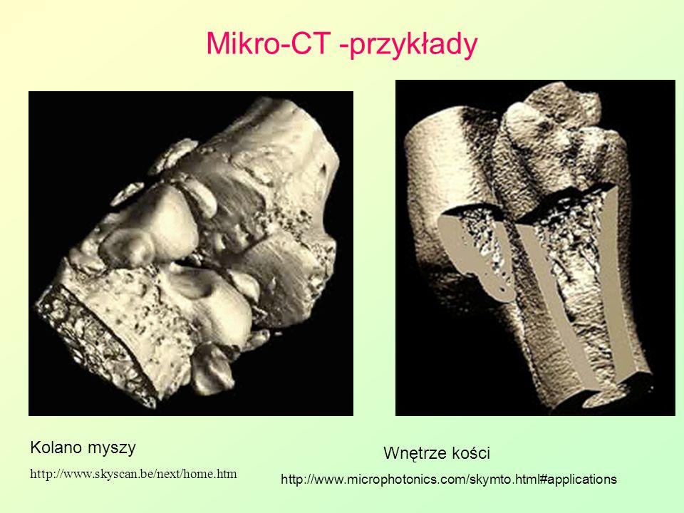 Mikro-CT -przykłady Kolano myszy Wnętrze kości
