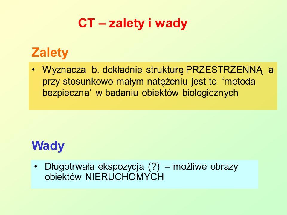 CT – zalety i wady Zalety Wady