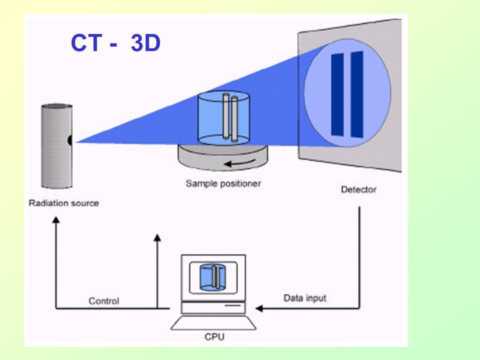 CT - 3D