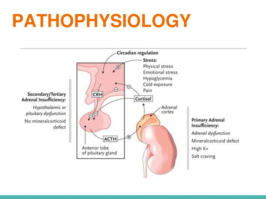 Addison S Disease Adrenal Insufficiency Ppt Video Online