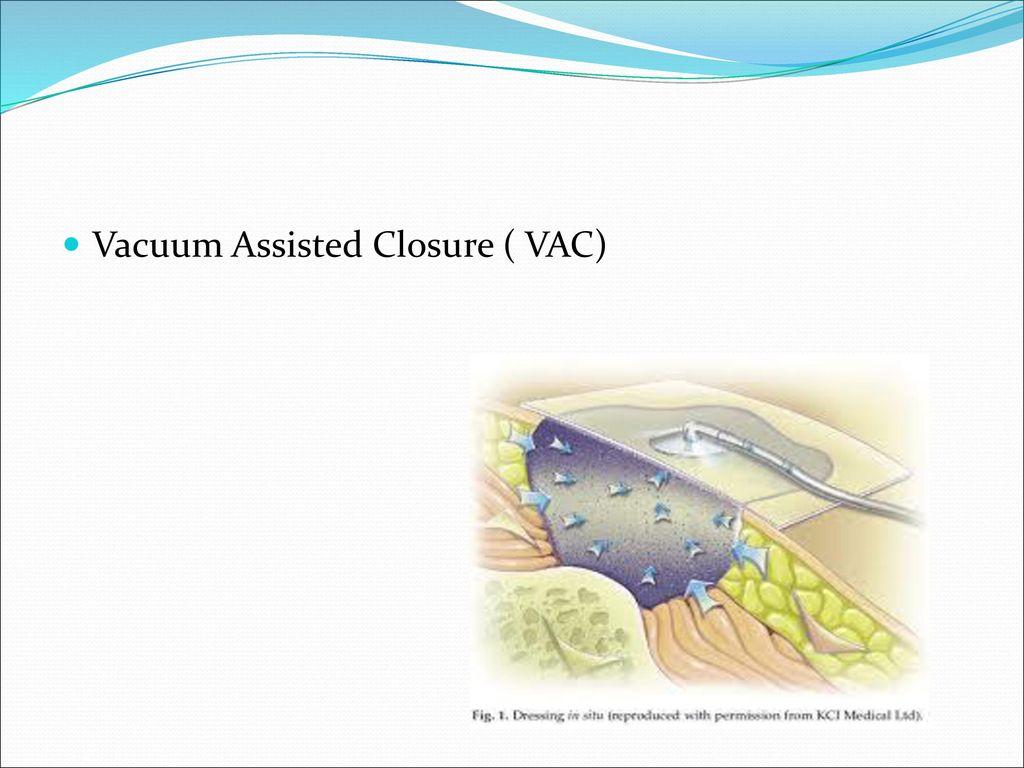 2 Vacuum Assisted Closure VAC