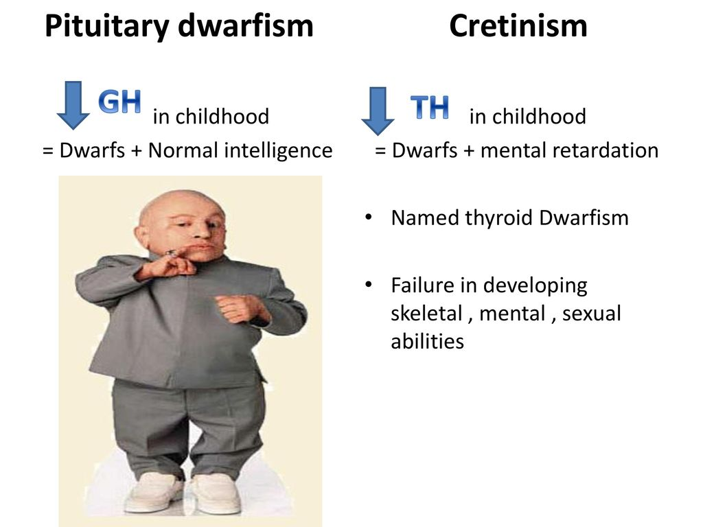 Pituitary dwarfism: causes, symptoms, treatment of the disease