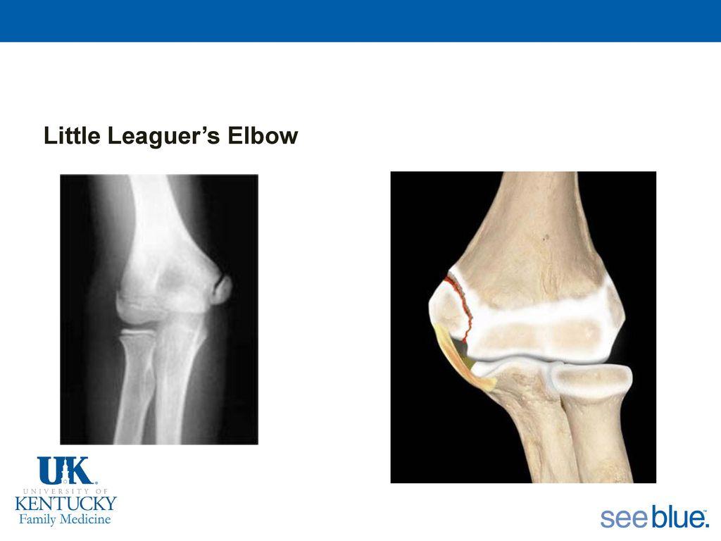 little league elbow