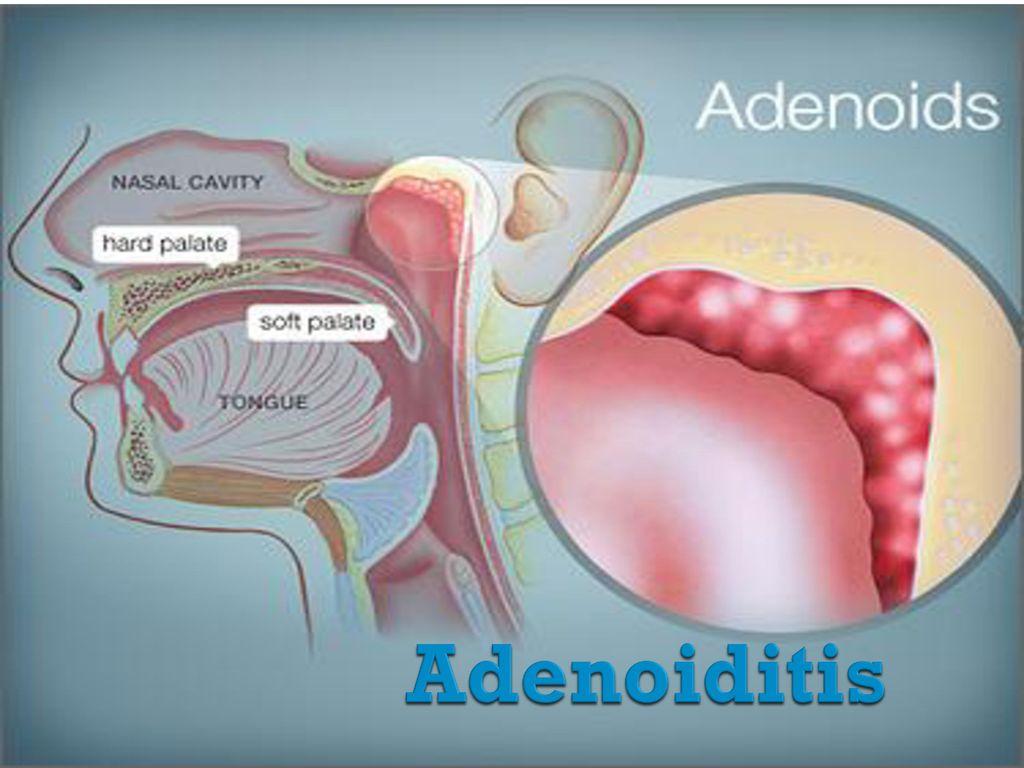 Adenoiditis Ppt Video Online Download