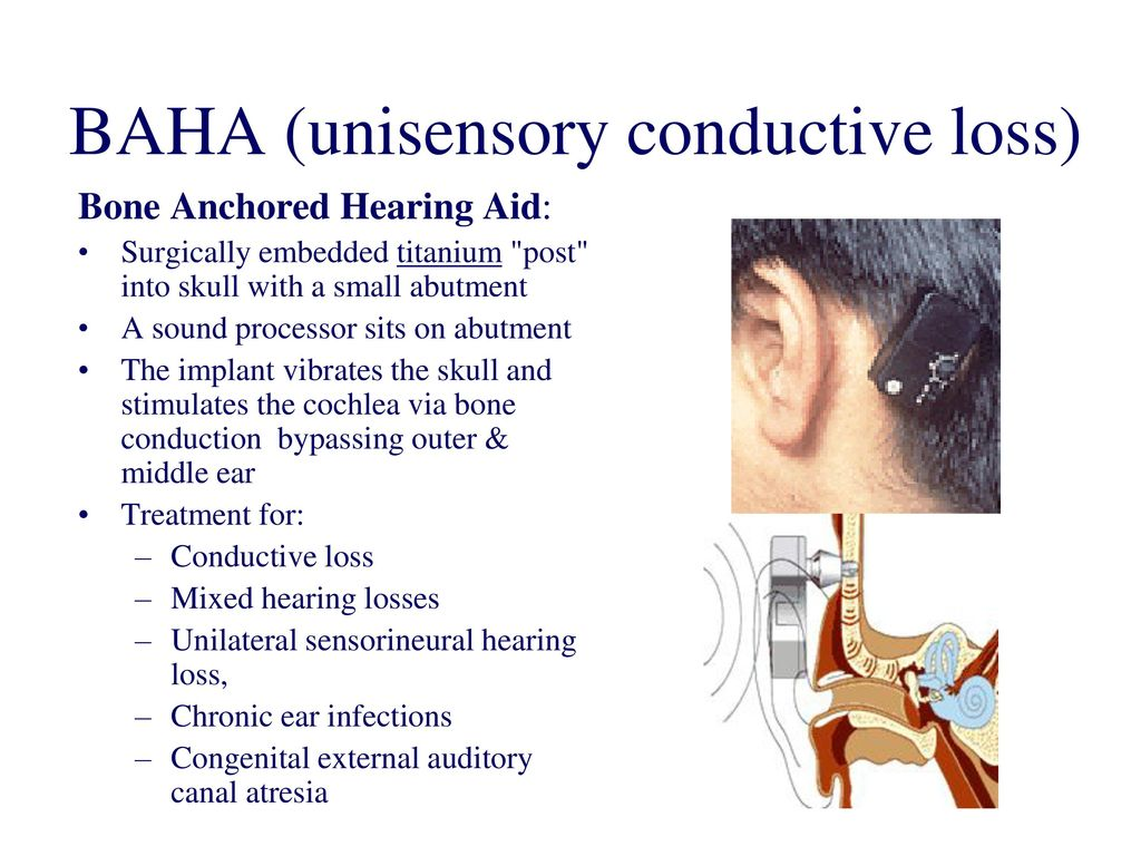 Single Sided Deafness Treatment What Is Single Sided