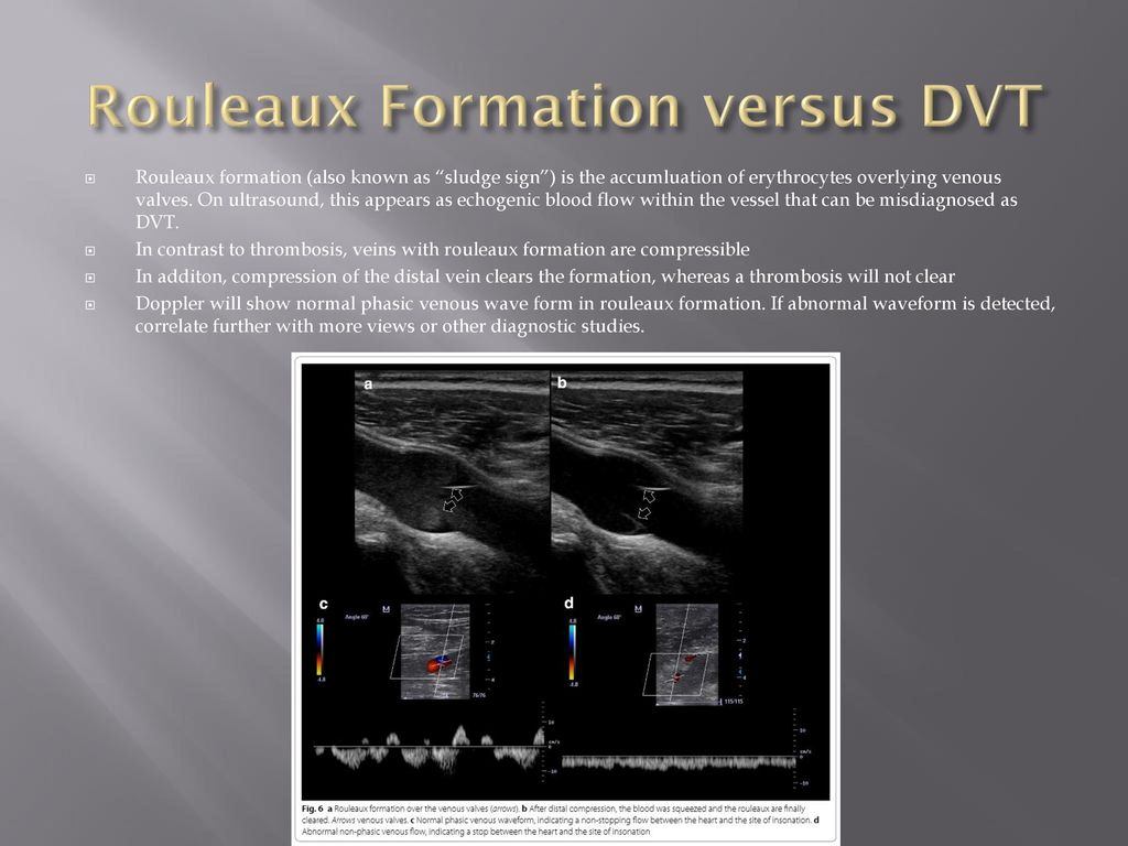 Examples of Pitfalls Confusing pericardial effusion with ...