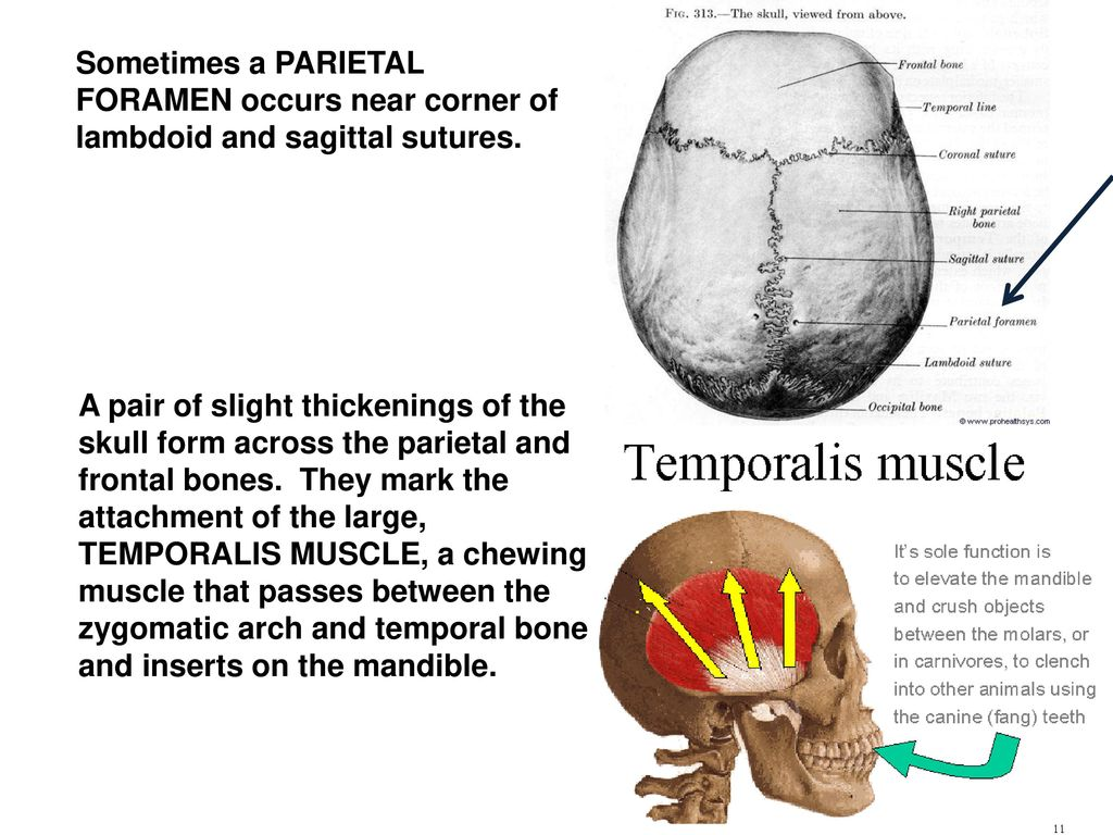 Contemporary Temporal Bones Anatomy Picture Collection - Physiology ...
