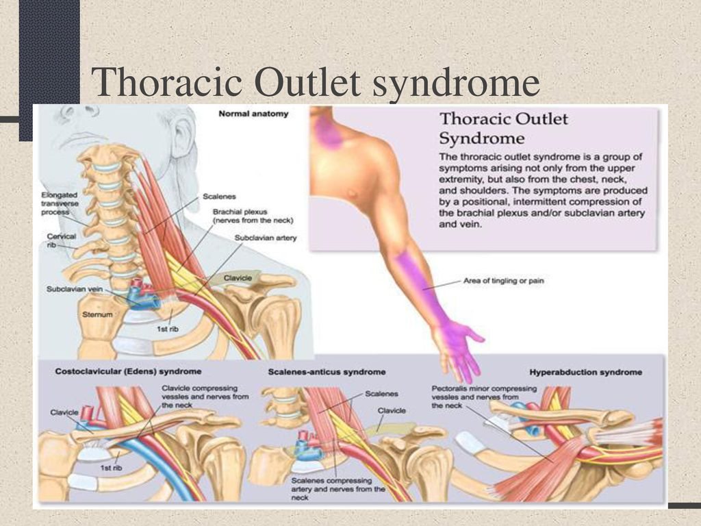 thoracic outlet syndrome - photo #13