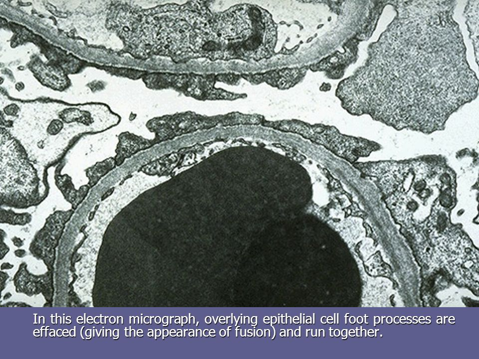 In this electron micrograph, overlying epithelial cell foot processes are effaced (giving the appearance of fusion) and run together.