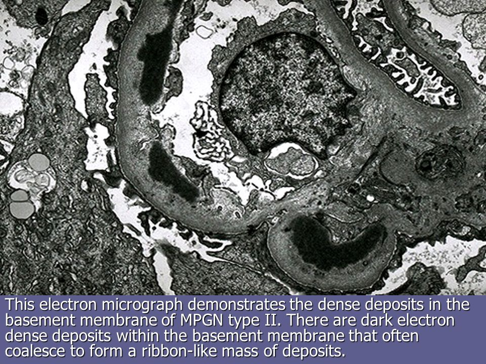 This electron micrograph demonstrates the dense deposits in the basement membrane of MPGN type II.