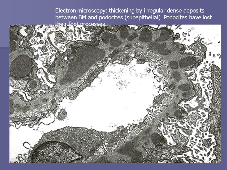 Electron microscopy: thickening by irregular dense deposits between BM and podocites (subepithelial).