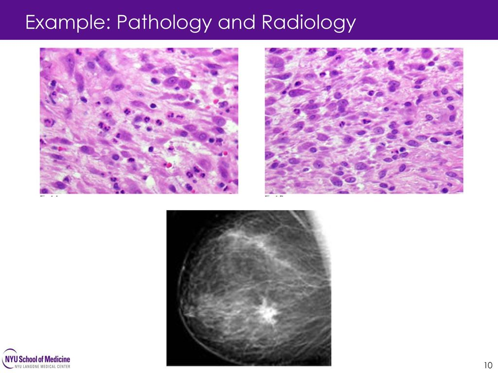 Example: Pathology and Radiology