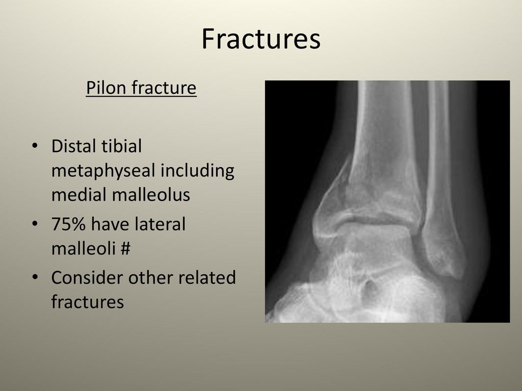 Ankle anatomy soft tissue injuries fractures ppt - Tibial plafond fracture classification ...