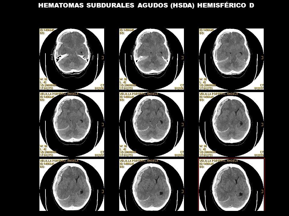 HEMATOMAS SUBDURALES AGUDOS (HSDA) HEMISFÉRICO D