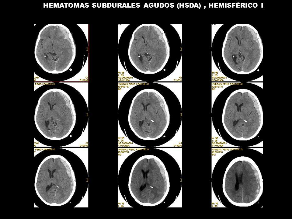 HEMATOMAS SUBDURALES AGUDOS (HSDA) , HEMISFÉRICO I