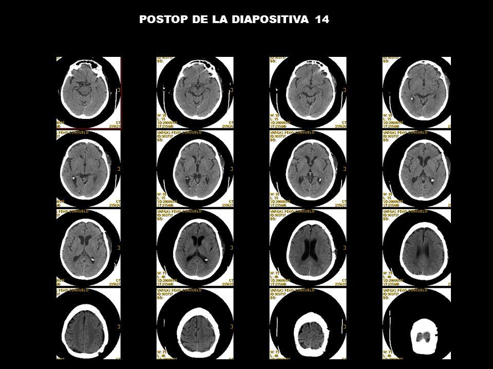 POSTOP DE LA DIAPOSITIVA 14