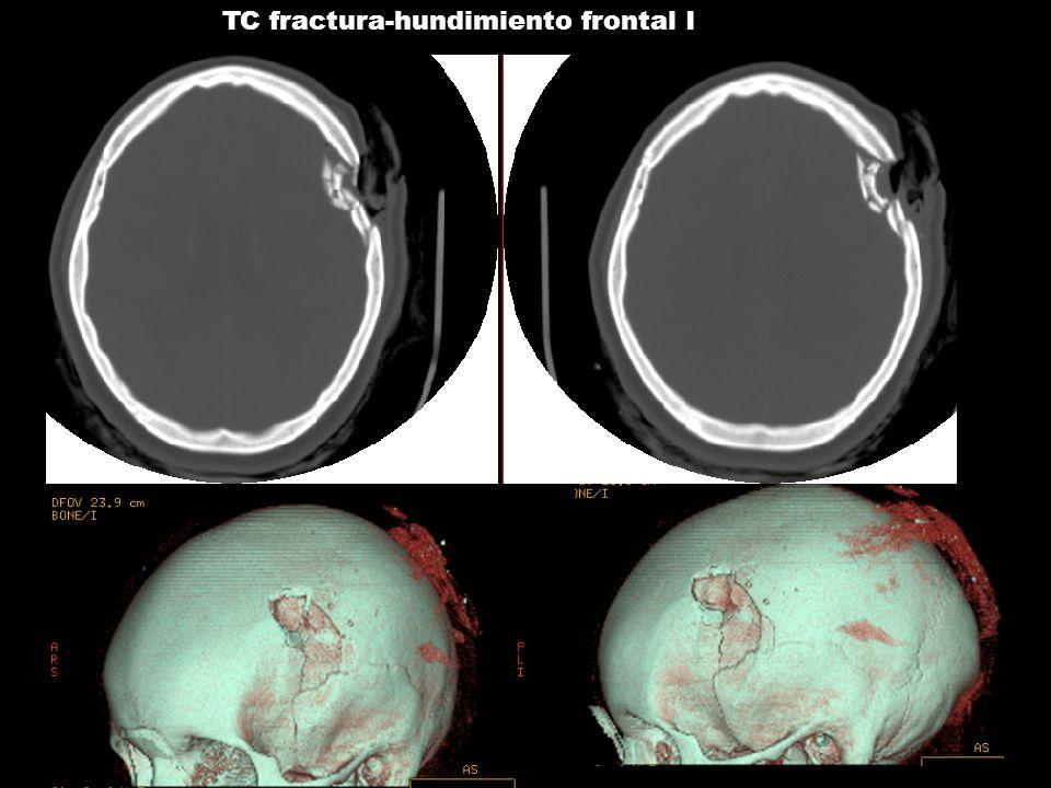 TC fractura-hundimiento frontal I