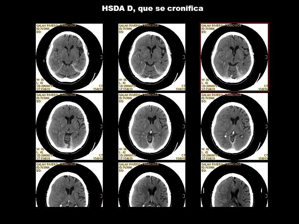 HSDA D, que se cronifica