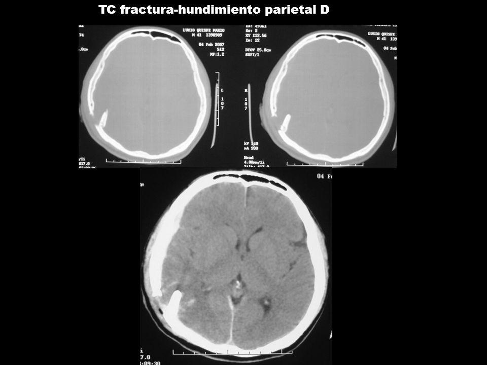TC fractura-hundimiento parietal D