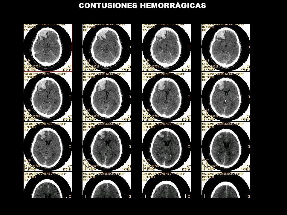 CONTUSIONES HEMORRÁGICAS