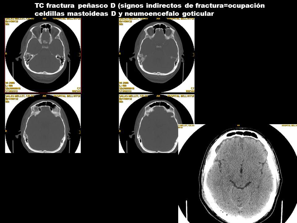 TC fractura peñasco D (signos indirectos de fractura=ocupación celdillas mastoideas D y neumoencefalo goticular