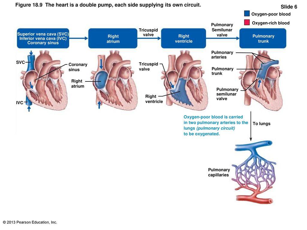 Fancy Ivc Anatomy Sketch - Anatomy Ideas - yunoki.info
