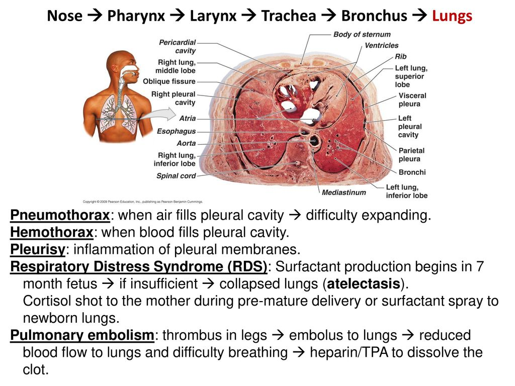61 Nose ? Pharynx ...  sc 1 st  SlidePlayer & The Respiratory System - ppt download