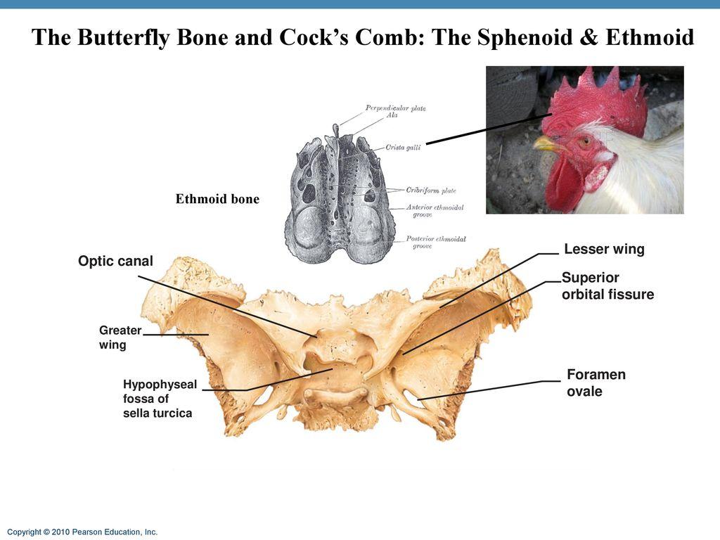 Erfreut Optic Kanalanatomie Fotos - Menschliche Anatomie Bilder ...