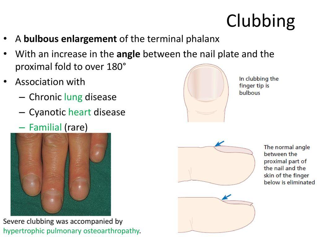 Regional dermatology Nail diseases - ppt download