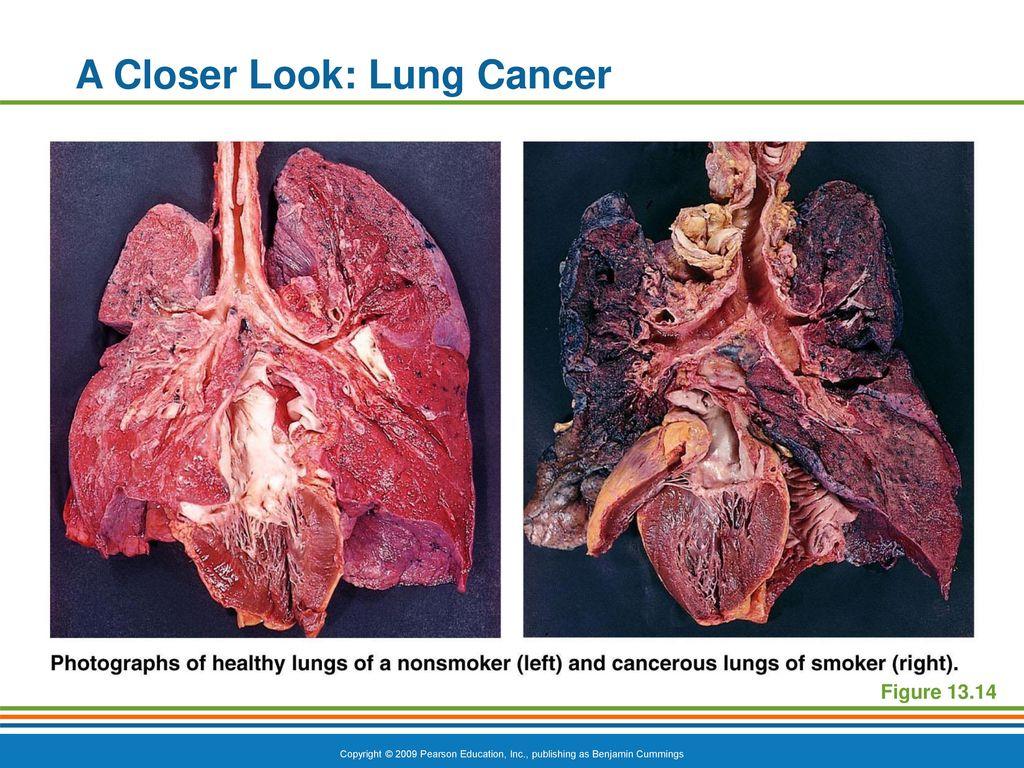 Lujoso Lung Cancer Anatomy And Physiology Imagen - Anatomía de Las ...