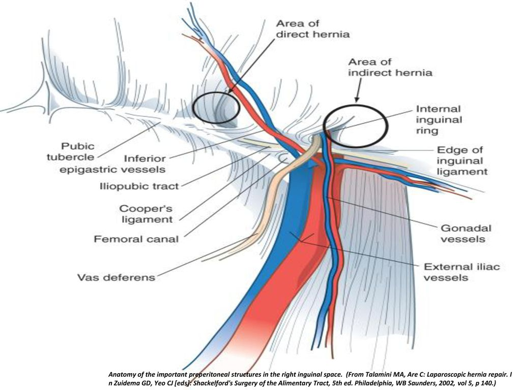 Awesome Inguinal Ligament Vignette - Human Anatomy Images ...