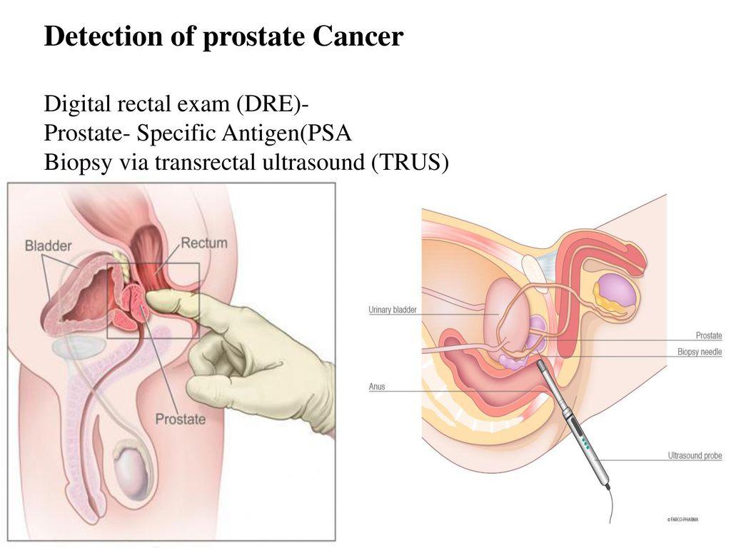Groß Trus Prostata Anatomie Zeitgenössisch - Menschliche Anatomie ...