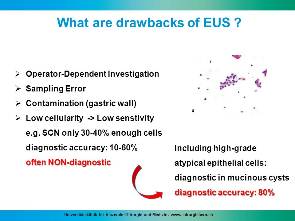 What are drawbacks of EUS