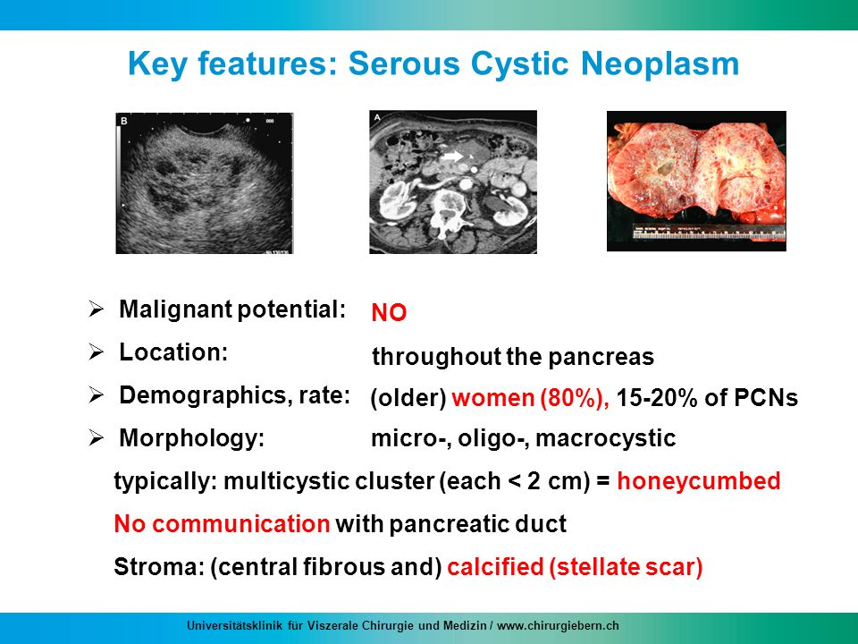 Key features: Serous Cystic Neoplasm