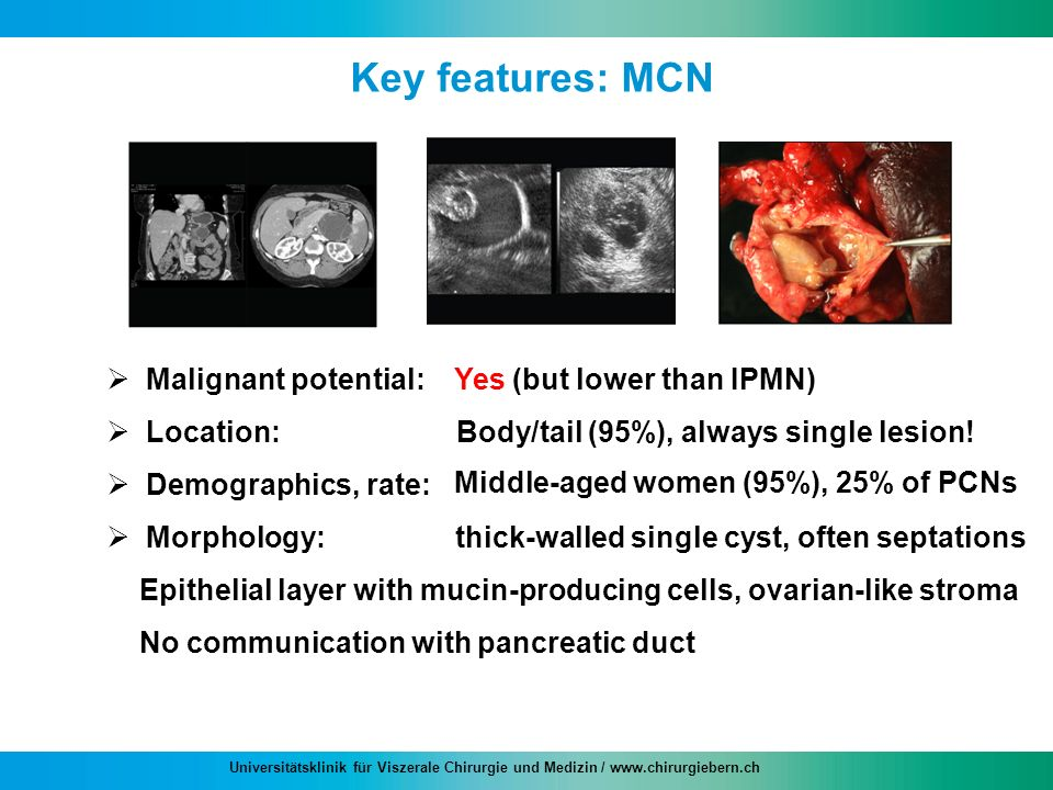 Key features: MCN thick-walled single cyst, often septations