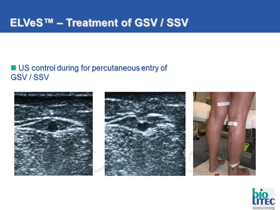 ELVeS™ – Treatment of GSV / SSV