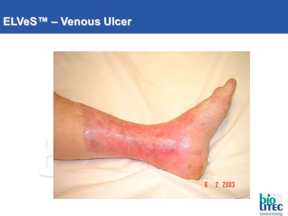 ELVeS™ – Venous Ulcer