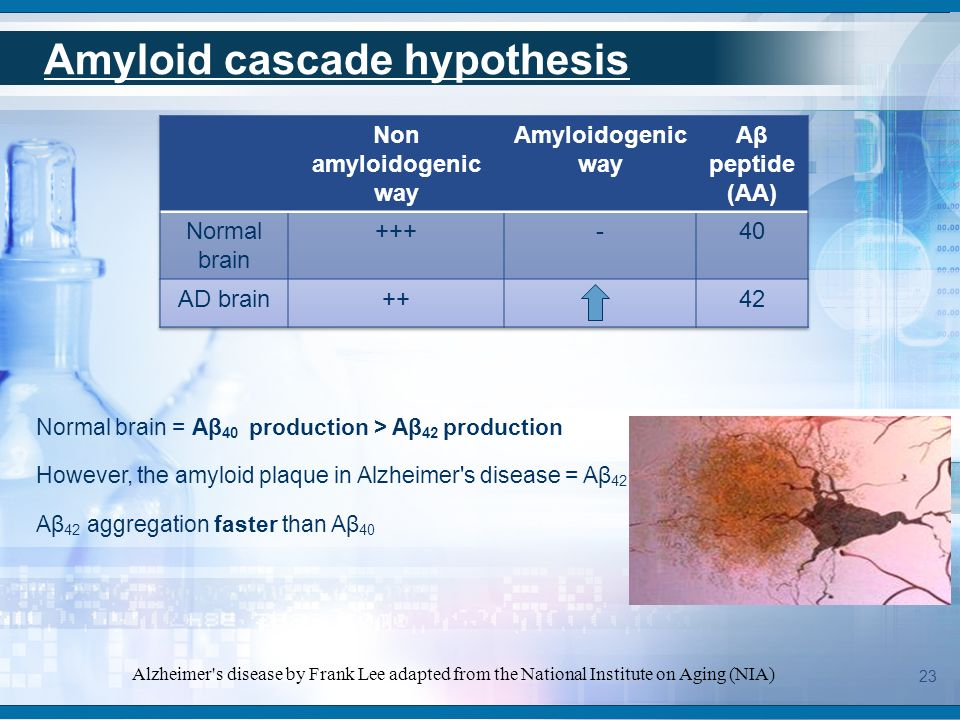 The amyloid cascade theory