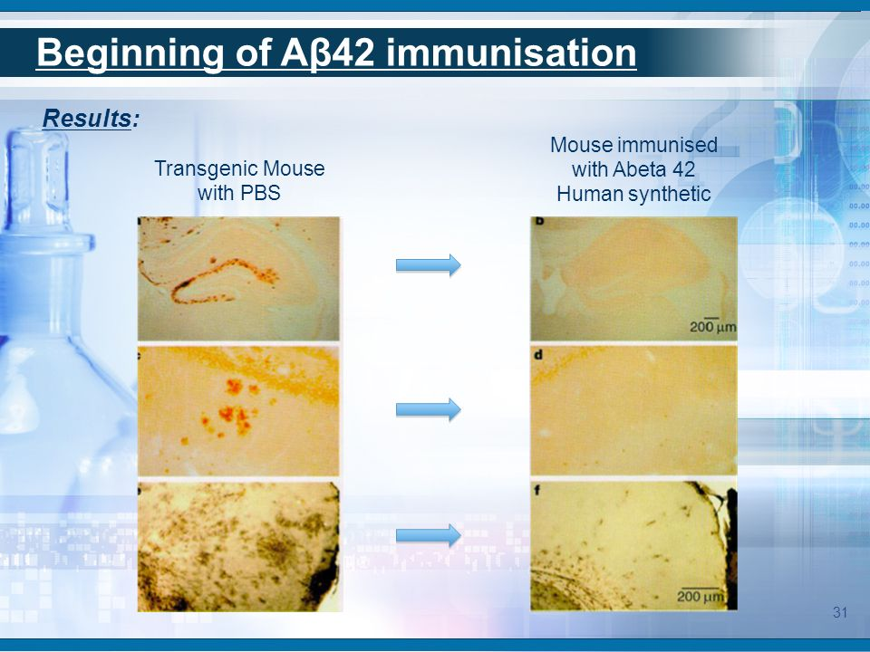 First human trial: AN1792 Elan pharmaceutical was the first in Active Immunotherapy on Alzheimer disease with AN1792.