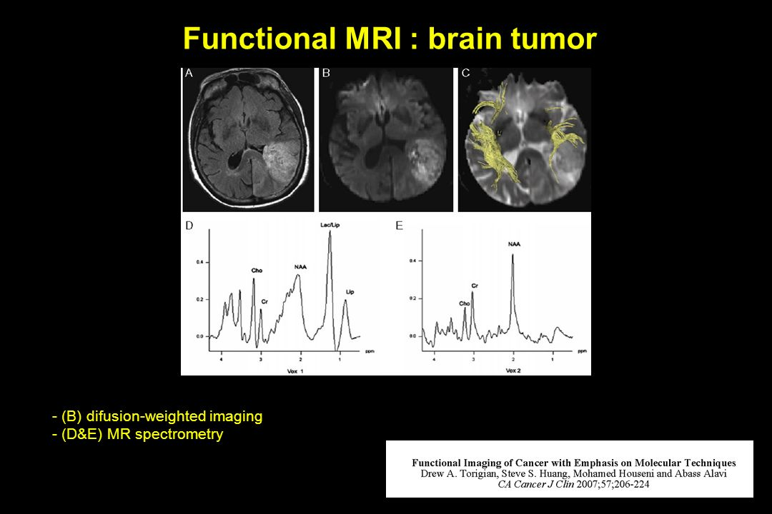 Functional MRI : brain tumor
