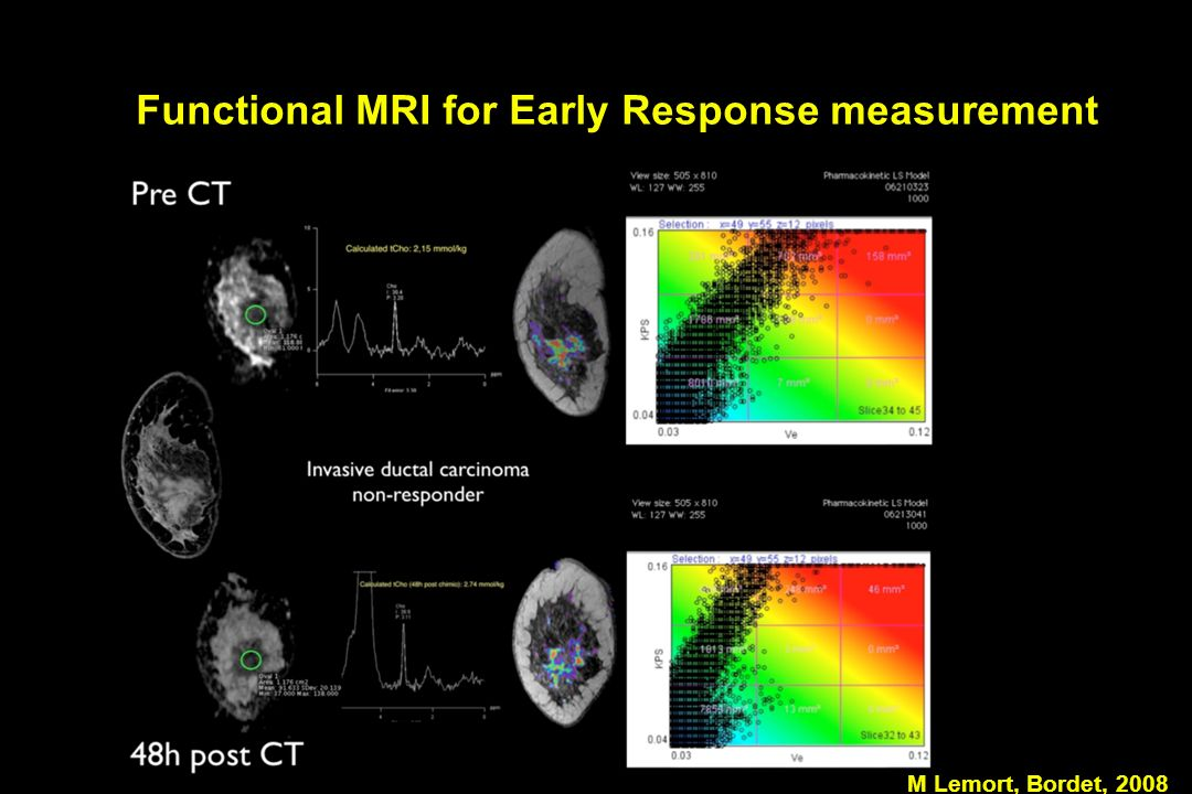 Functional MRI for Early Response measurement