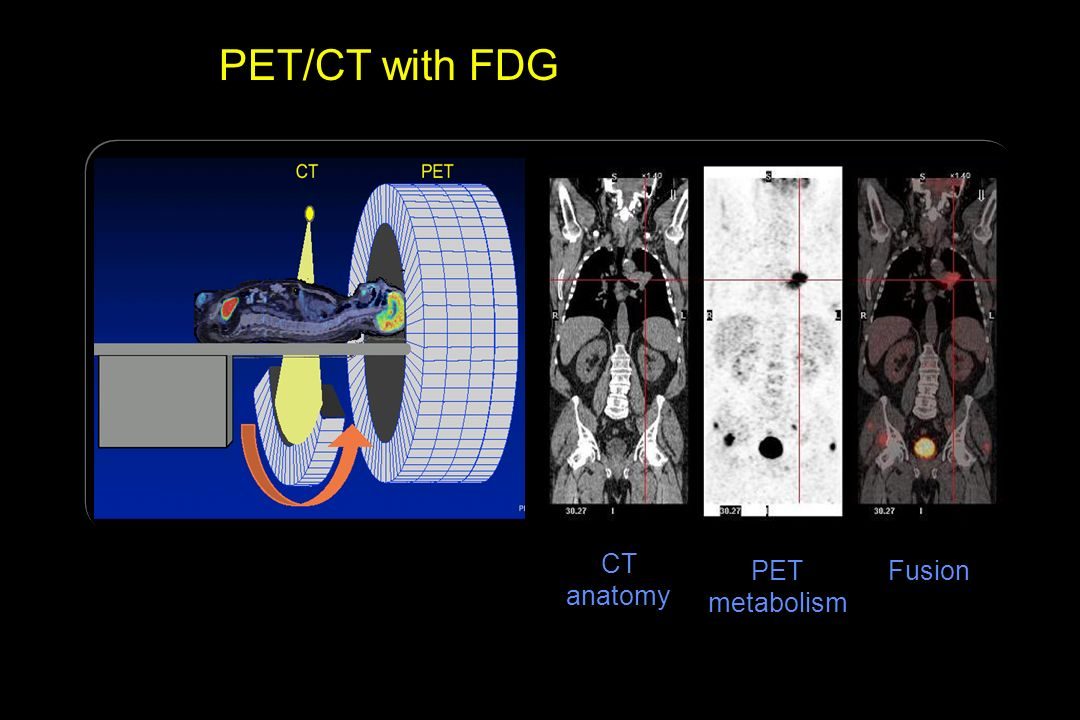 PET/CT with FDG CT anatomy PET metabolism Fusion