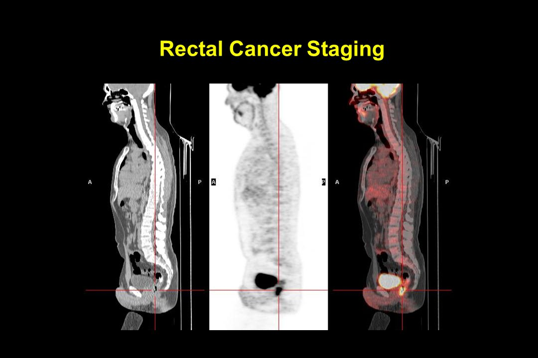 Rectal Cancer Staging