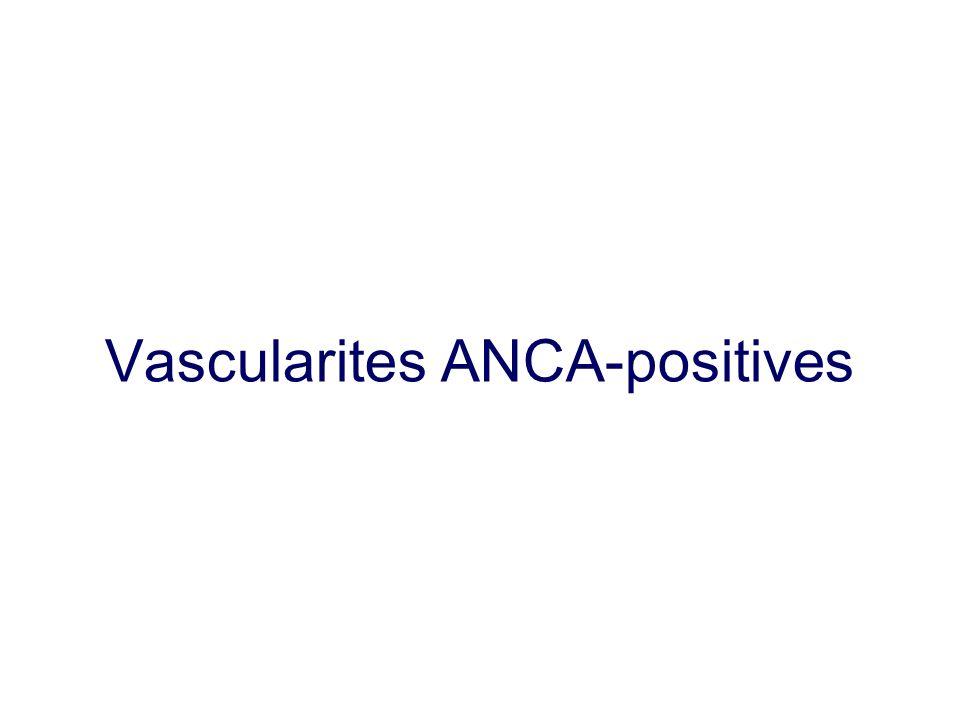 Vascularites ANCA-positives