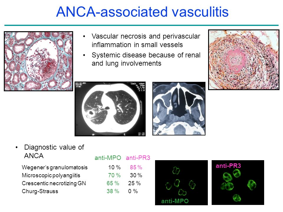 ANCA-associated vasculitis