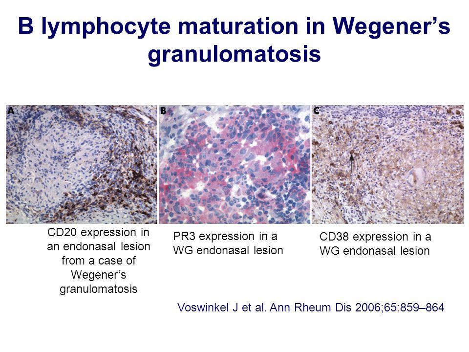 B lymphocyte maturation in Wegener's granulomatosis