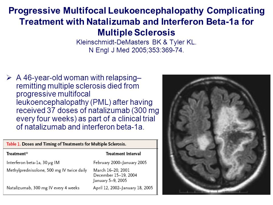 Progressive Multifocal Leukoencephalopathy Complicating Treatment with Natalizumab and Interferon Beta-1a for Multiple Sclerosis Kleinschmidt-DeMasters BK & Tyler KL. N Engl J Med 2005;353:369-74.