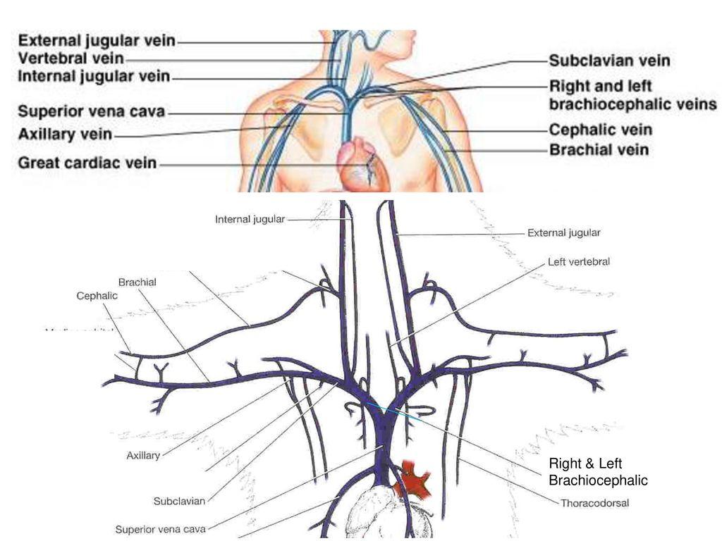 Luxury Brachiocephalic Vein Gallery - Anatomy Ideas - yunoki.info