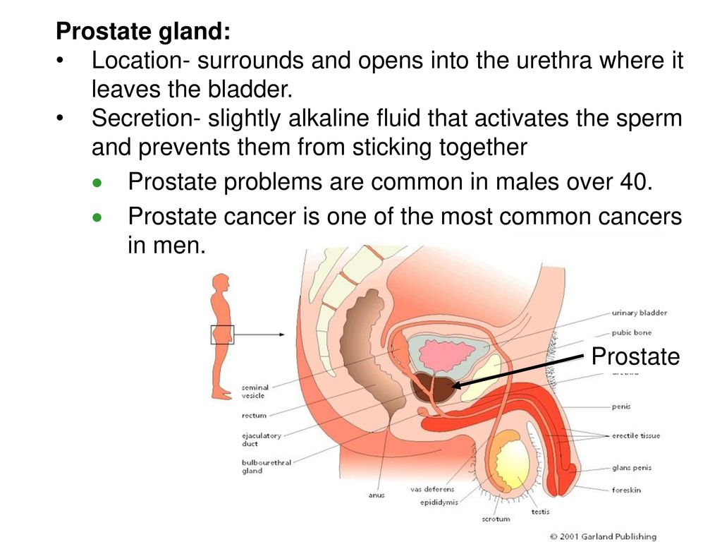 Dorable Anatomy And Physiology Of Prostate Cancer Embellishment ...