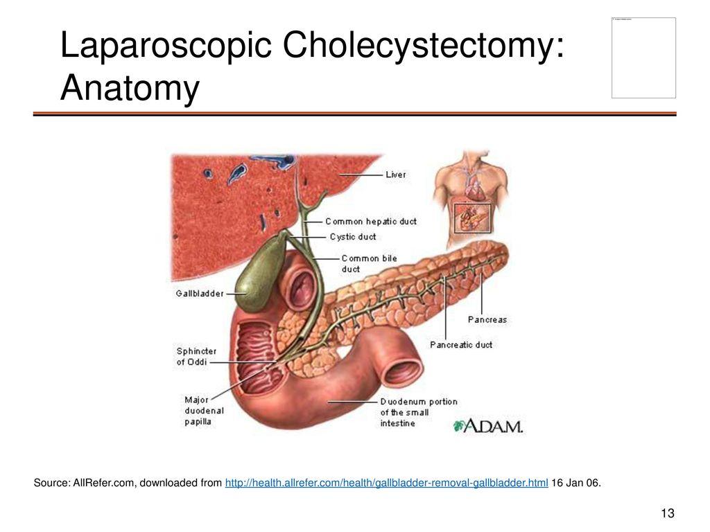 Old Fashioned Laparoscopic Cholecystectomy Anatomy Crest - Anatomy ...